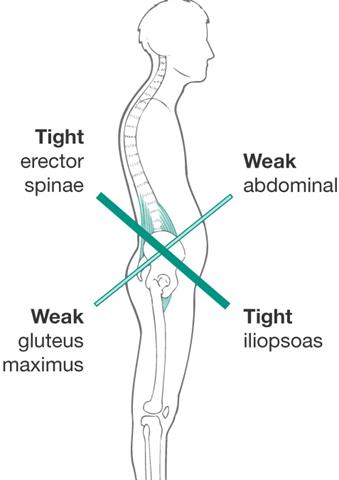 Anterior pelvic tilt causes