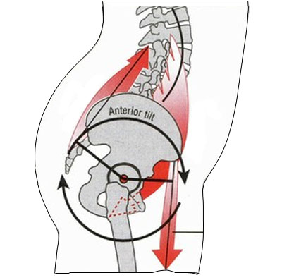 Anterior pelvic tilt diagram