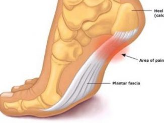 Plantar Fasciitis treatment and prevention