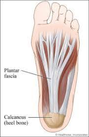 Plantar Fasciitis: Treatment and Prevention